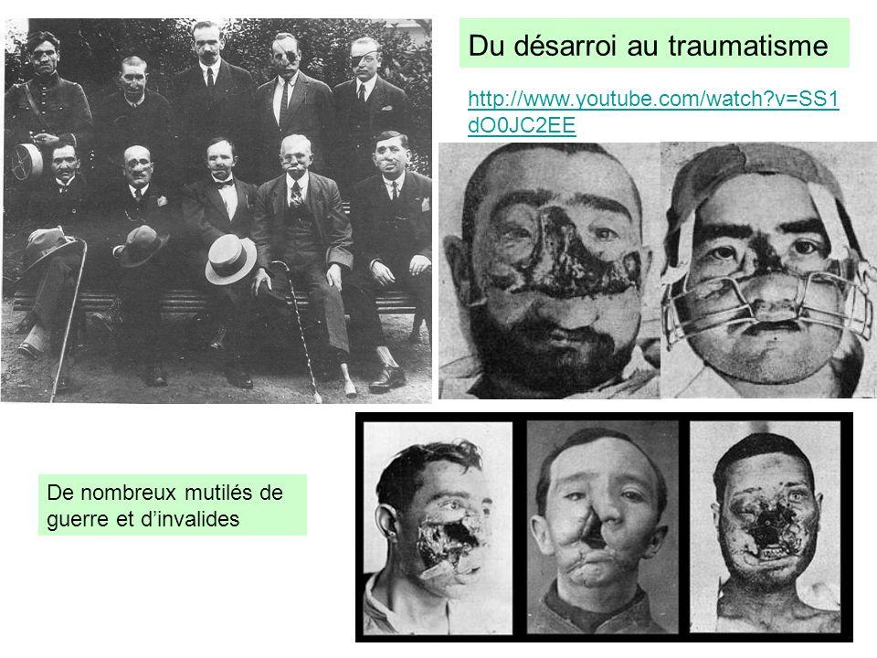 De nombreux mutilés de guerre et dinvalides Du désarroi au traumatisme http://www.youtube.com/watch?v=SS1 dO0JC2EE