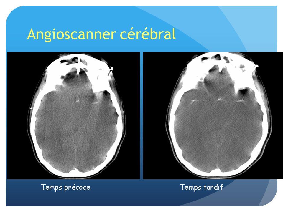 Angioscanner cérébral Temps précoceTemps tardif