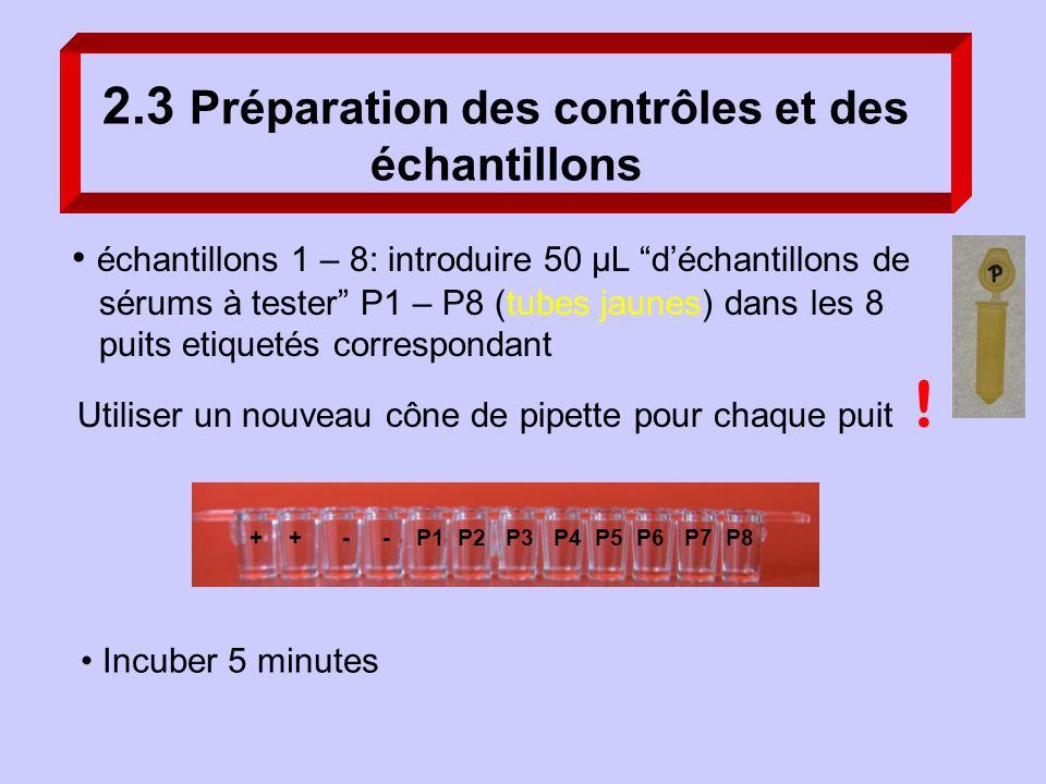 Incuber 5 minutes échantillons 1 – 8: introduire 50 µL déchantillons de sérums à tester P1 – P8 (tubes jaunes) dans les 8 puits etiquetés correspondan