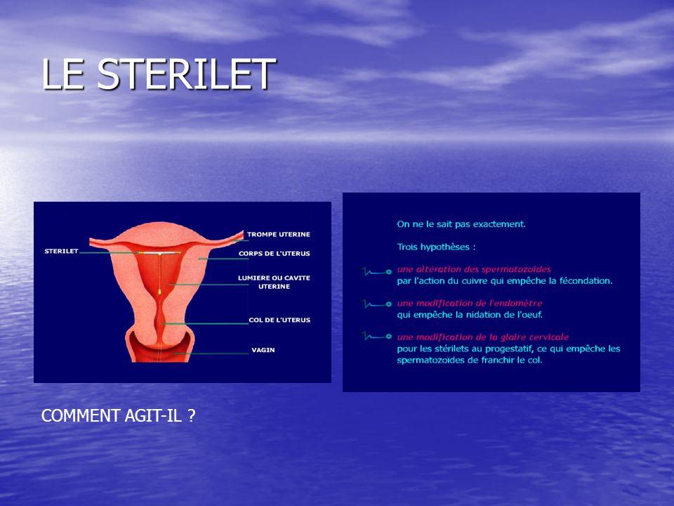 LE STERILET COMMENT AGIT-IL ?