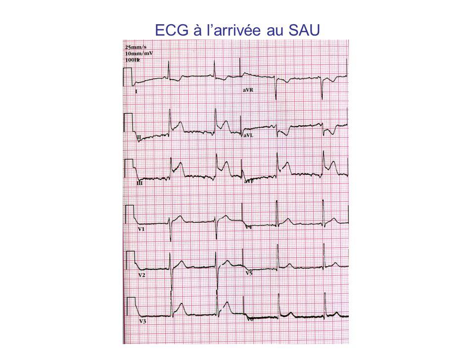 ECG à larrivée au SAU