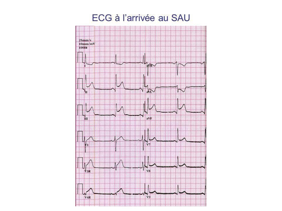 Choc cardiogénique Choc : hypotension : TAs < 90 mm Hg ou - 30 mm Hg en cas dHTA signes de souffrance viscérale Cardiogénique : + signes gauches : IDM étendu, complications mécaniques, troubles du rythme ou de conduction, surtout sur myocarde déjà altéré, valvulopathies aiguës + signes droits : EP massive, tamponnade, IDM étendu au VD Cardiogénique : « froid », différentielle pincée signes gauches : galop, crépitants signes droits : hépatalgie ± hépatomégalie, Turgescence jugulaire,reflux hépato jugulaire, ± OMI