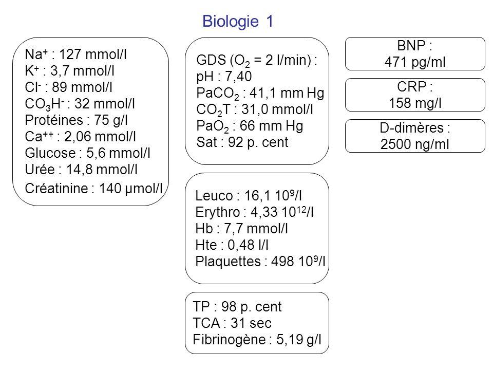 Biologie 1 GDS (O 2 = 2 l/min) : pH : 7,40 PaCO 2 : 41,1 mm Hg CO 2 T : 31,0 mmol/l PaO 2 : 66 mm Hg Sat : 92 p. cent BNP : 471 pg/ml Na + : 127 mmol/