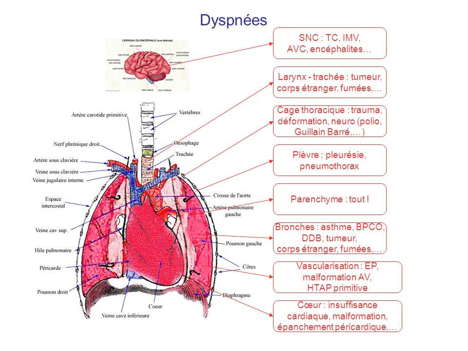 Dyspnées SNC : TC, IMV, AVC, encéphalites… Larynx - trachée : tumeur, corps étranger, fumées,… Cœur : insuffisance cardiaque, malformation, épanchemen