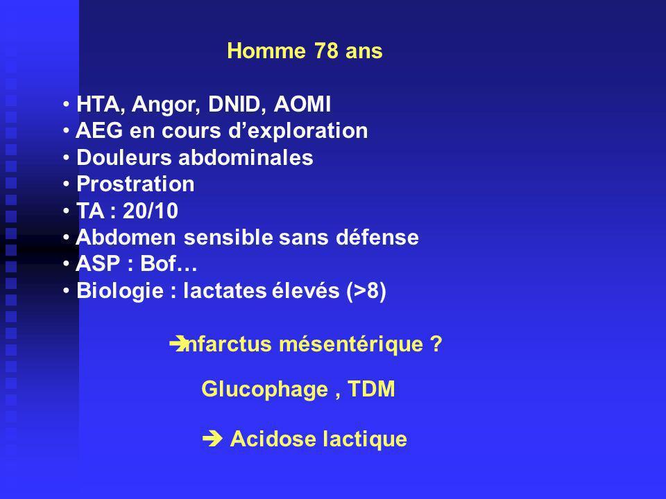 Homme 78 ans HTA, Angor, DNID, AOMI AEG en cours dexploration Douleurs abdominales Prostration TA : 20/10 Abdomen sensible sans défense ASP : Bof… Biologie : lactates élevés (>8) Infarctus mésentérique .