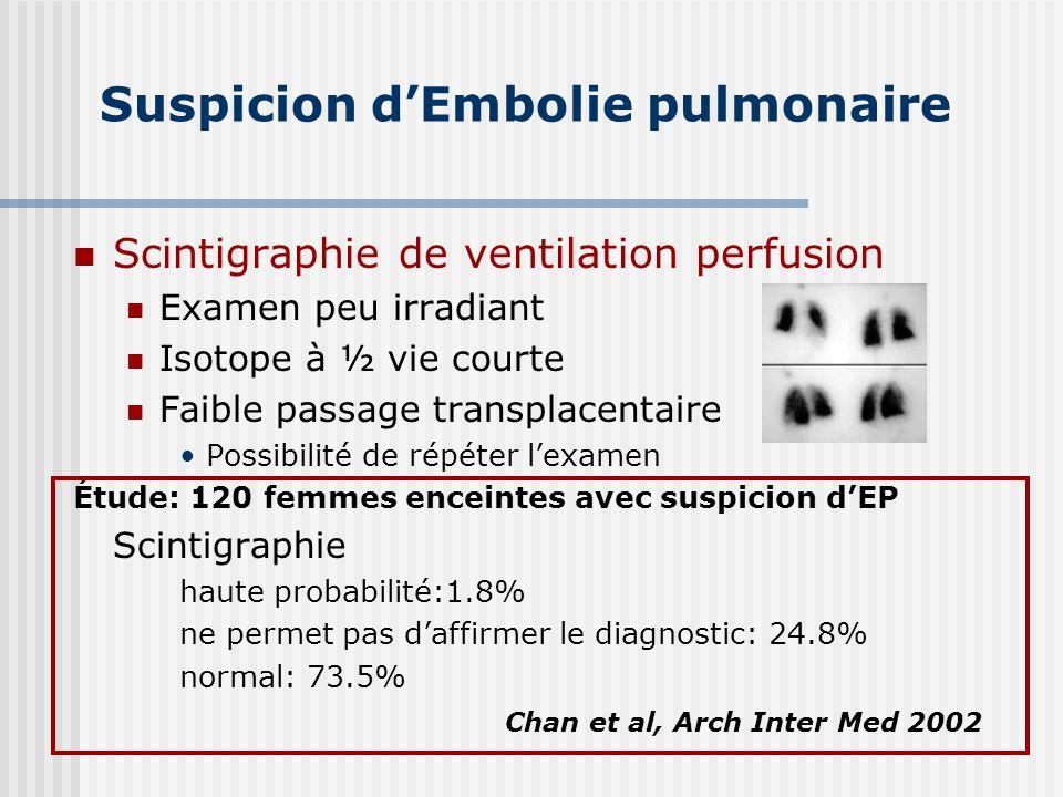 Suspicion dEmbolie pulmonaire Scintigraphie de ventilation perfusion Examen peu irradiant Isotope à ½ vie courte Faible passage transplacentaire Possi