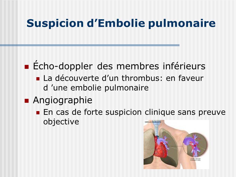 Suspicion dEmbolie pulmonaire Écho-doppler des membres inférieurs La découverte dun thrombus: en faveur d une embolie pulmonaire Angiographie En cas d