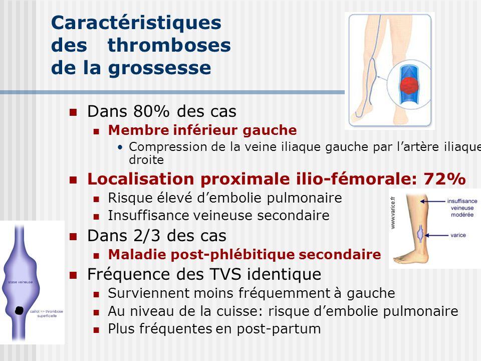 Caractéristiques des thromboses de la grossesse Dans 80% des cas Membre inférieur gauche Compression de la veine iliaque gauche par lartère iliaque dr