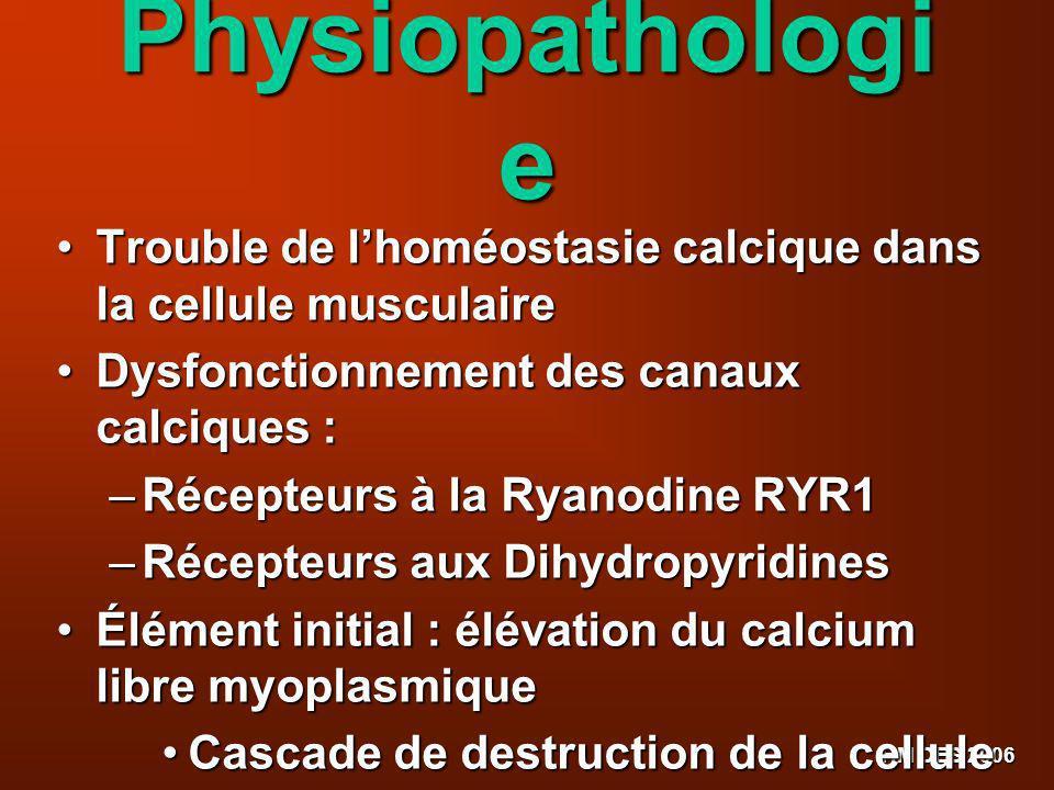 HM DES 2006 Physiopathologi e Trouble de lhoméostasie calcique dans la cellule musculaire Trouble de lhoméostasie calcique dans la cellule musculaire
