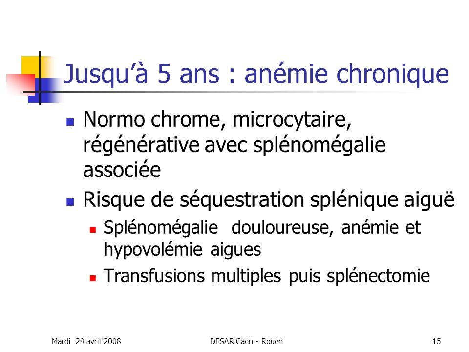 Mardi 29 avril 2008DESAR Caen - Rouen15 Jusquà 5 ans : anémie chronique Normo chrome, microcytaire, régénérative avec splénomégalie associée Risque de