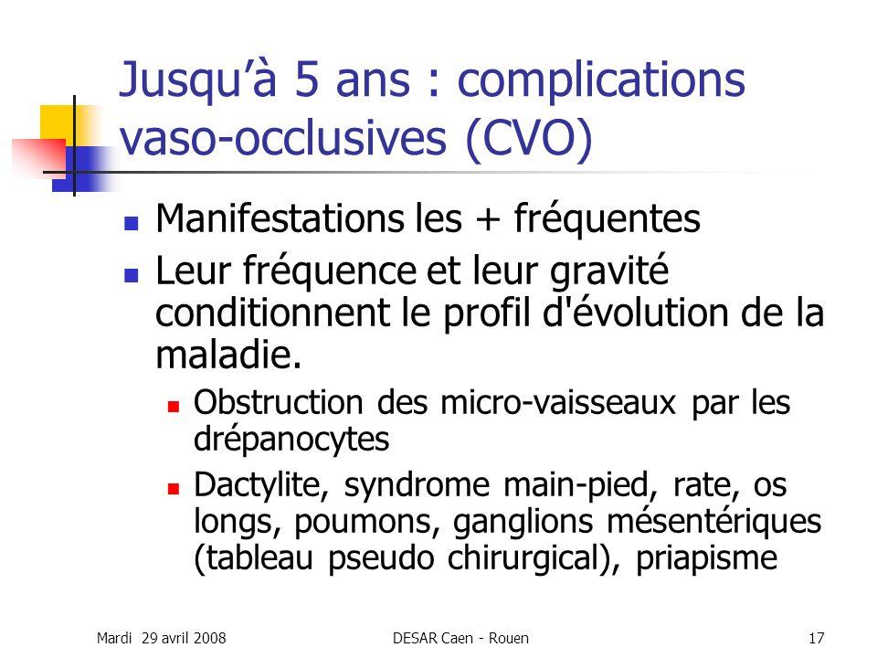 Mardi 29 avril 2008DESAR Caen - Rouen17 Jusquà 5 ans : complications vaso-occlusives (CVO) Manifestations les + fréquentes Leur fréquence et leur grav