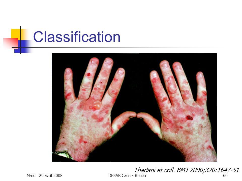Mardi 29 avril 2008DESAR Caen - Rouen60 Classification Thadani et coll. BMJ 2000;320:1647-51