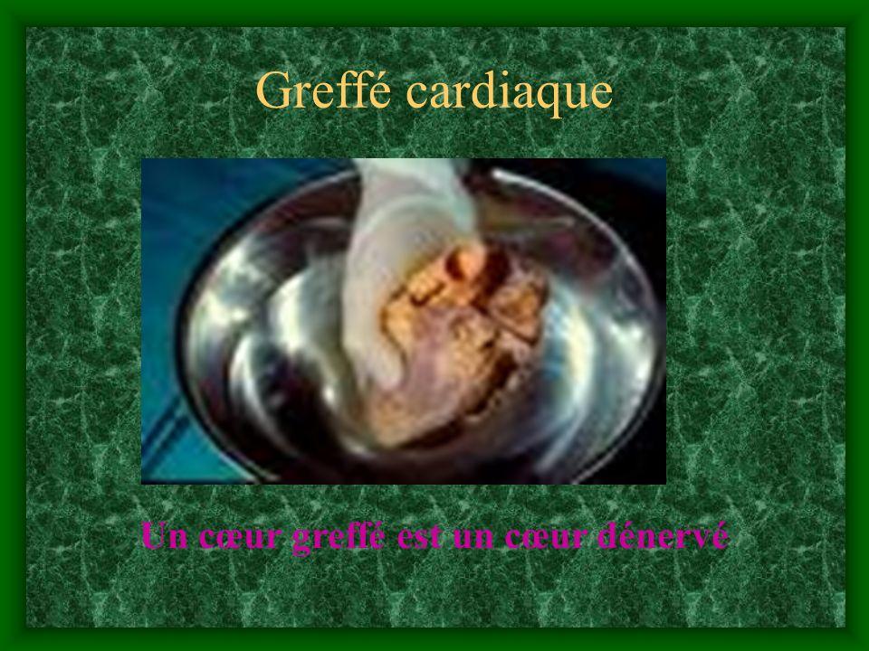 Greffé cardiaque Un cœur greffé est un cœur dénervé