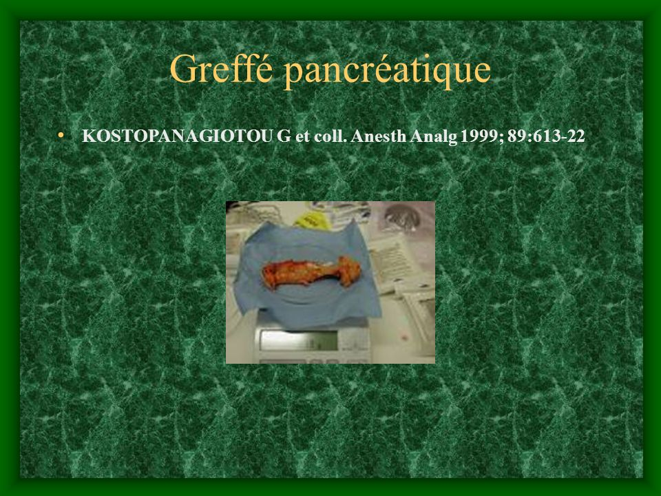 Greffé pancréatique KOSTOPANAGIOTOU G et coll. Anesth Analg 1999; 89:613-22