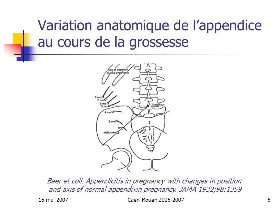 15 mai 2007Caen-Rouen 2006-20076 Variation anatomique de lappendice au cours de la grossesse Baer et coll. Appendicitis in pregnancy with changes in p