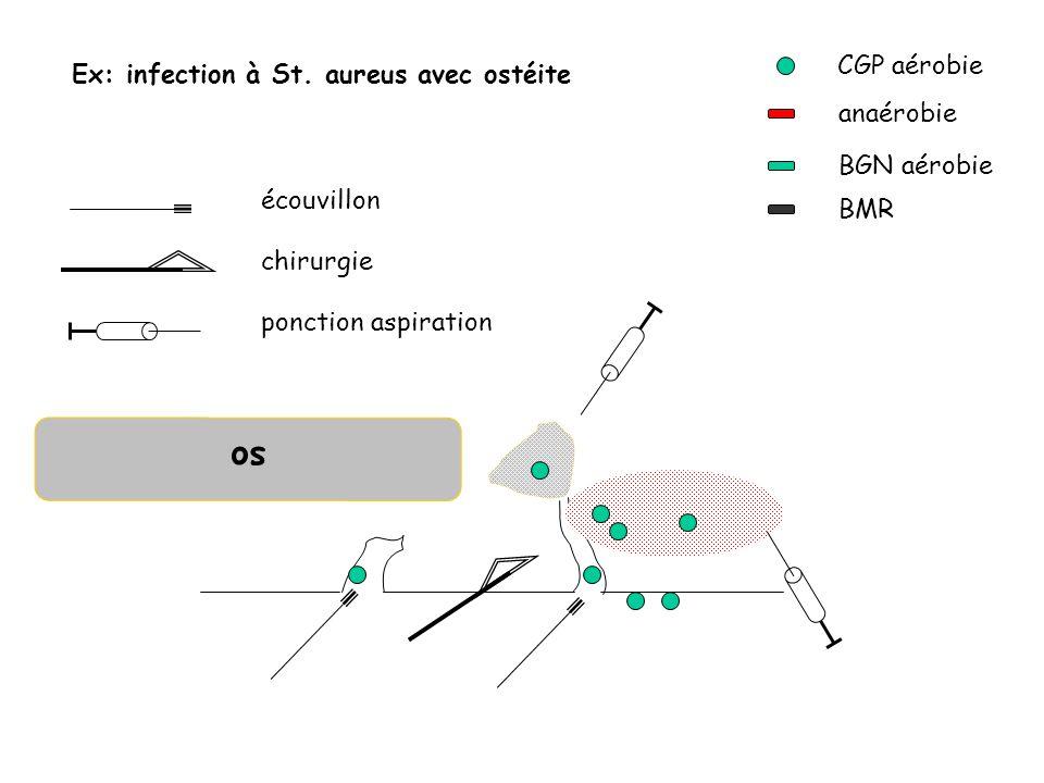 so CGP aérobie anaérobie BGN aérobie BMR Ex: infection à St. aureus avec ostéite écouvillon chirurgie ponction aspiration