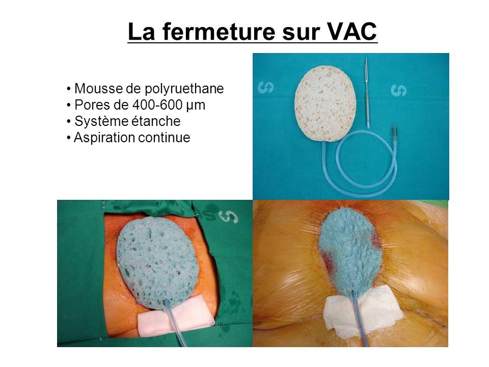 La fermeture sur VAC Mousse de polyruethane Pores de 400-600 µm Système étanche Aspiration continue