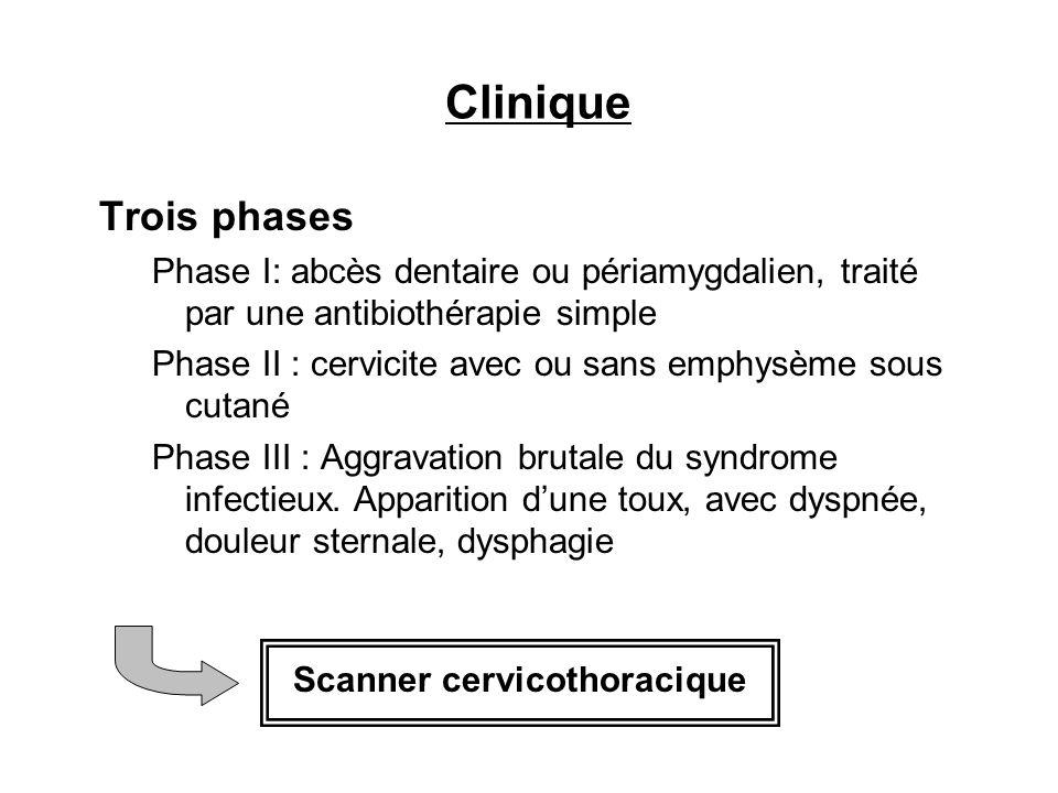 Clinique Trois phases Phase I: abcès dentaire ou périamygdalien, traité par une antibiothérapie simple Phase II : cervicite avec ou sans emphysème sou