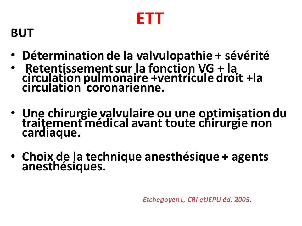 ETT BUT Détermination de la valvulopathie + sévérité Retentissement sur la fonction VG + la circulation pulmonaire +ventricule droit +la circulation c