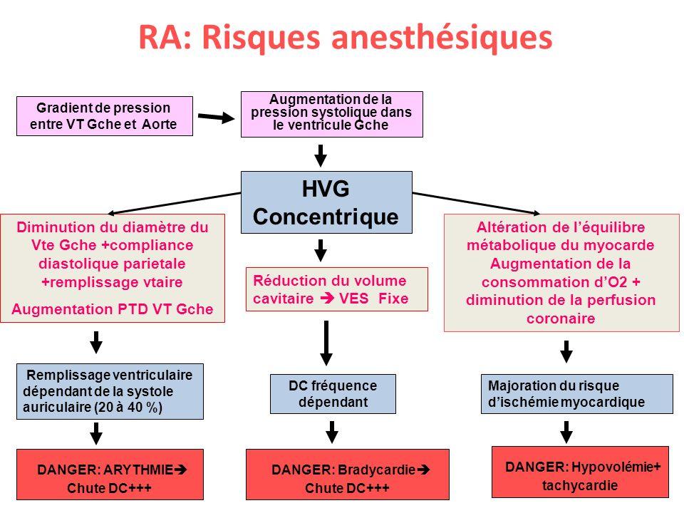 RA: Risques anesthésiques TISSUS BRULES Gradient de pression entre VT Gche et Aorte Augmentation de la pression systolique dans le ventricule Gche Alt