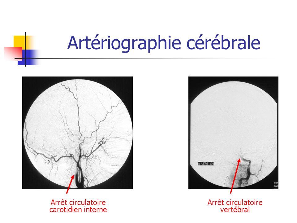 Artériographie cérébrale Arrêt circulatoire carotidien interne Arrêt circulatoire vertébral