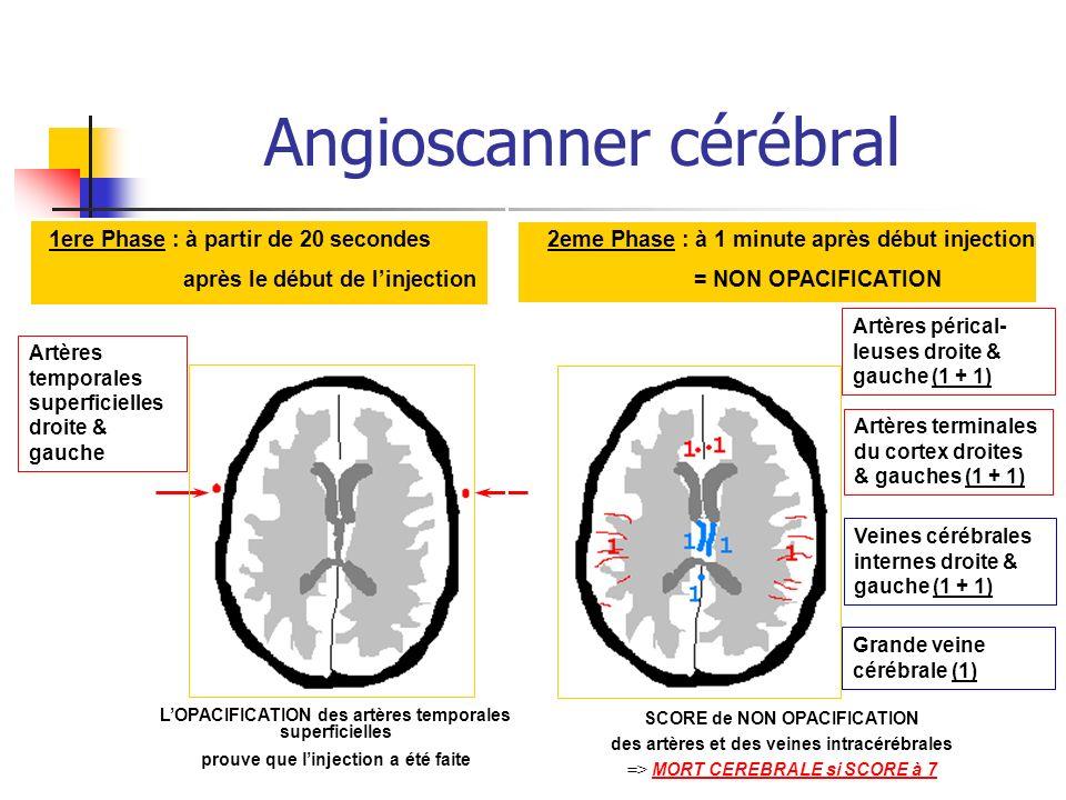 Angioscanner cérébral 1ere Phase : à partir de 20 secondes après le début de linjection 2eme Phase : à 1 minute après début injection = NON OPACIFICATION LOPACIFICATION des artères temporales superficielles prouve que linjection a été faite Artères temporales superficielles droite & gauche Artères pérical- leuses droite & gauche (1 + 1) Artères terminales du cortex droites & gauches (1 + 1) Veines cérébrales internes droite & gauche (1 + 1) Grande veine cérébrale (1) SCORE de NON OPACIFICATION des artères et des veines intracérébrales => MORT CEREBRALE si SCORE à 7