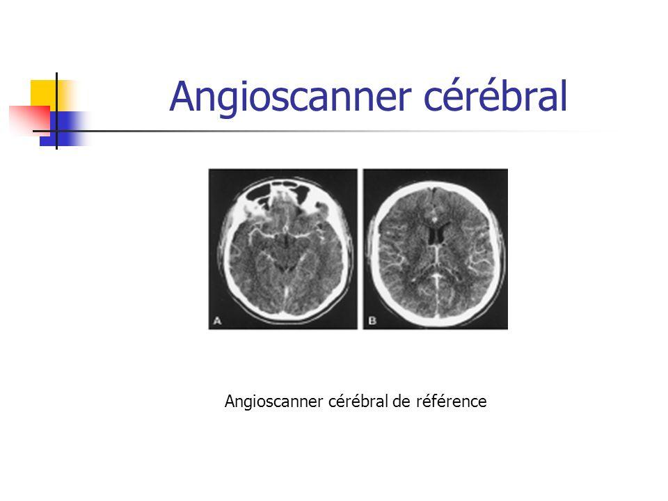Angioscanner cérébral Temps tardif Pas de vascularisation en distalité Pas de retour veineux Angioscanner cérébral de référence