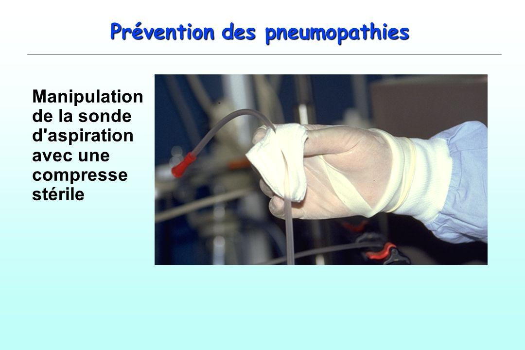 Prévention des pneumopathies Manipulation de la sonde d'aspiration avec une compresse stérile