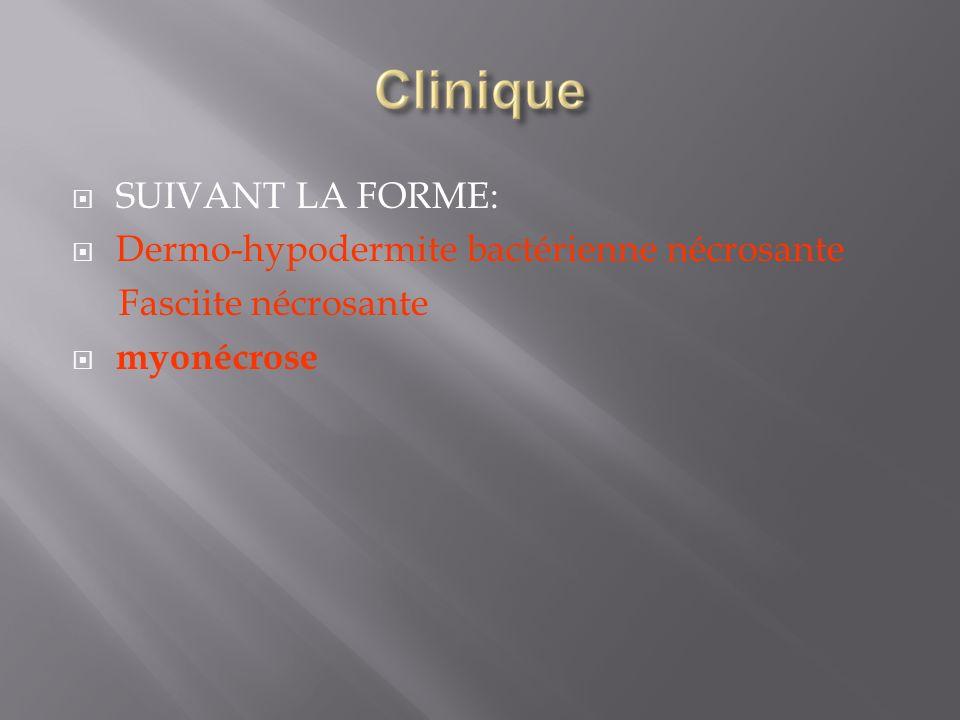 SUIVANT LA FORME: Dermo-hypodermite bactérienne nécrosante Fasciite nécrosante myonécrose