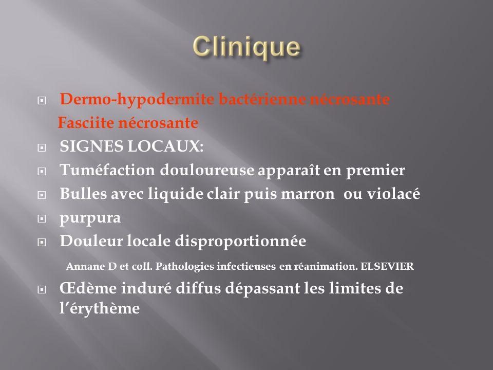 Dermo-hypodermite bactérienne nécrosante Fasciite nécrosante SIGNES LOCAUX: Tuméfaction douloureuse apparaît en premier Bulles avec liquide clair puis