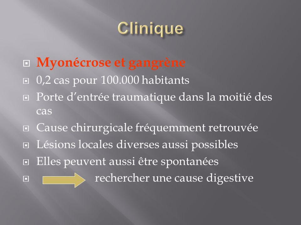 Myonécrose et gangrène 0,2 cas pour 100.000 habitants Porte dentrée traumatique dans la moitié des cas Cause chirurgicale fréquemment retrouvée Lésion