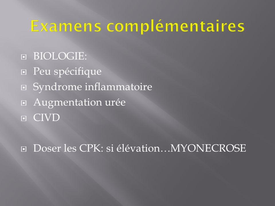 BIOLOGIE: Peu spécifique Syndrome inflammatoire Augmentation urée CIVD Doser les CPK: si élévation…MYONECROSE