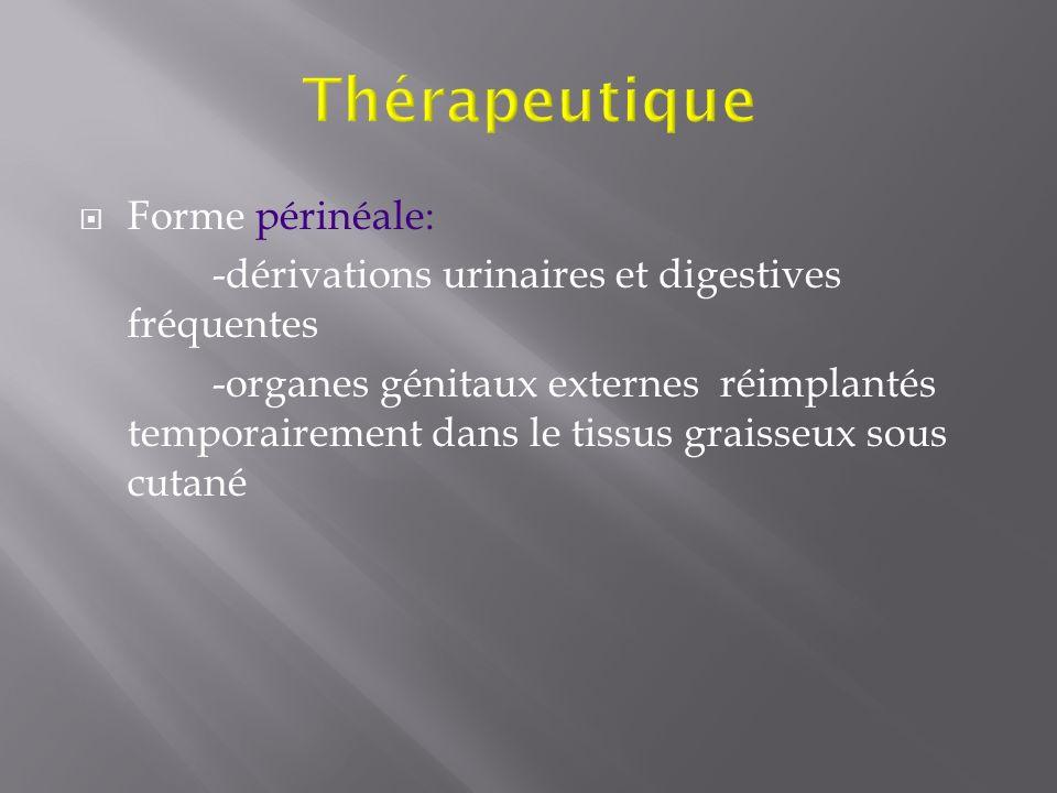 Forme périnéale: -dérivations urinaires et digestives fréquentes -organes génitaux externes réimplantés temporairement dans le tissus graisseux sous c