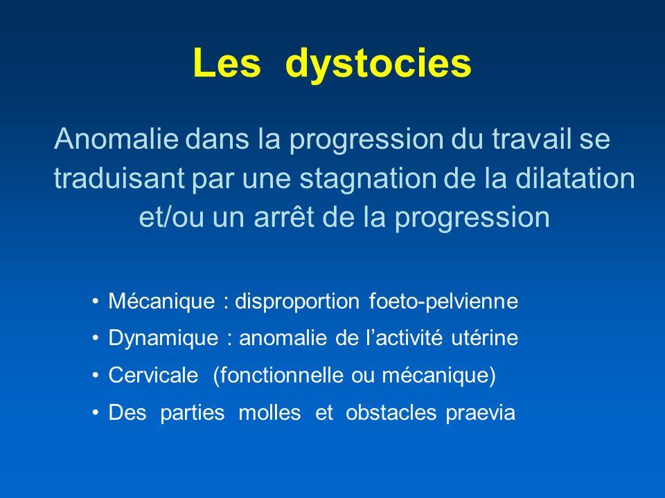 Les dystocies Anomalie dans la progression du travail se traduisant par une stagnation de la dilatation et/ou un arrêt de la progression Mécanique : d