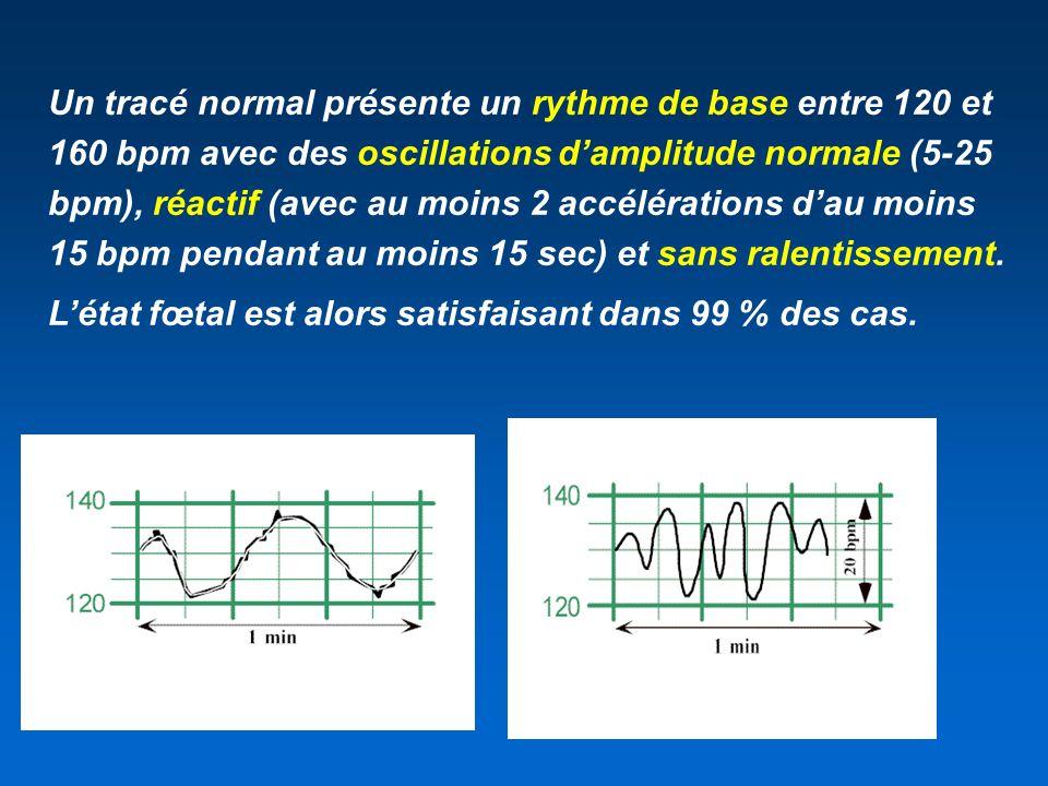 Un tracé normal présente un rythme de base entre 120 et 160 bpm avec des oscillations damplitude normale (5-25 bpm), réactif (avec au moins 2 accéléra