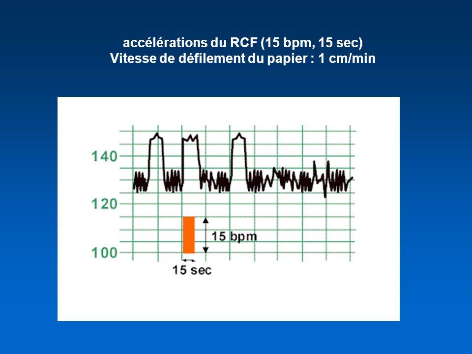 accélérations du RCF (15 bpm, 15 sec) Vitesse de défilement du papier : 1 cm/min