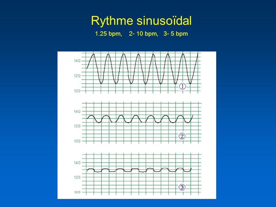 Rythme sinusoïdal 1.25 bpm, 2- 10 bpm, 3- 5 bpm
