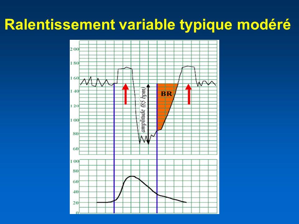 Ralentissement variable typique modéré