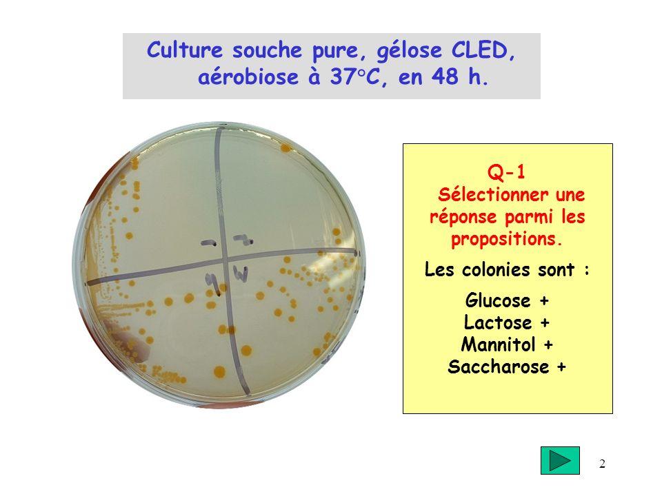2 Culture souche pure, gélose CLED, aérobiose à 37°C, en 48 h. Q-1 Sélectionner une réponse parmi les propositions. Les colonies sont : Glucose + Lact