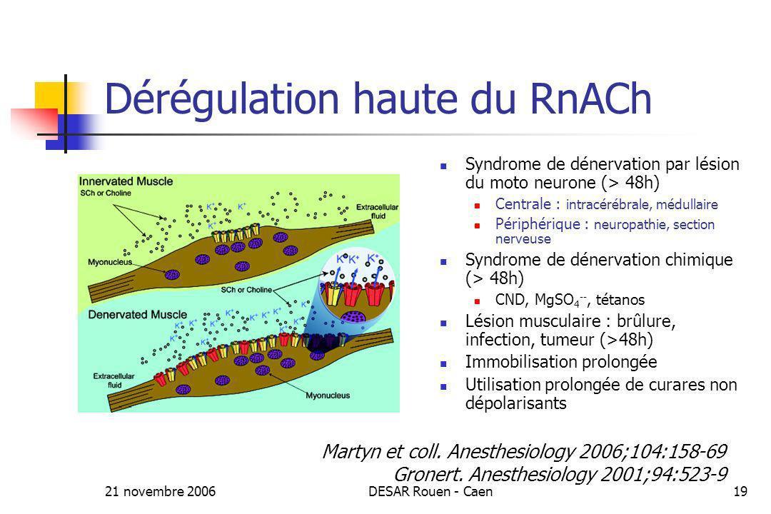 21 novembre 2006DESAR Rouen - Caen19 Dérégulation haute du RnACh Syndrome de dénervation par lésion du moto neurone (> 48h) Centrale : intracérébrale,