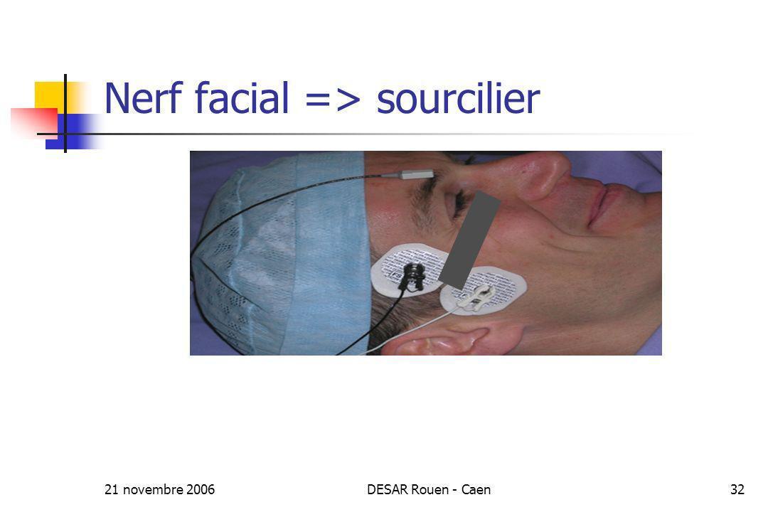 21 novembre 2006DESAR Rouen - Caen32 Nerf facial => sourcilier