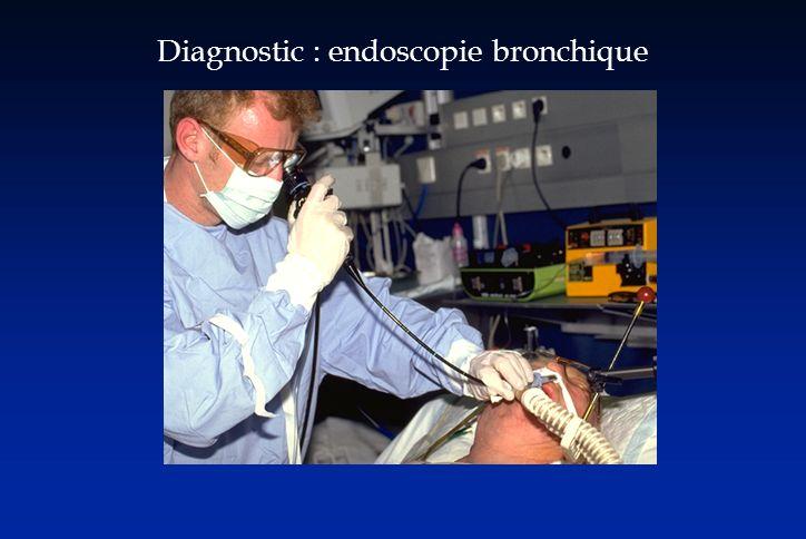 Diagnostic : endoscopie bronchique