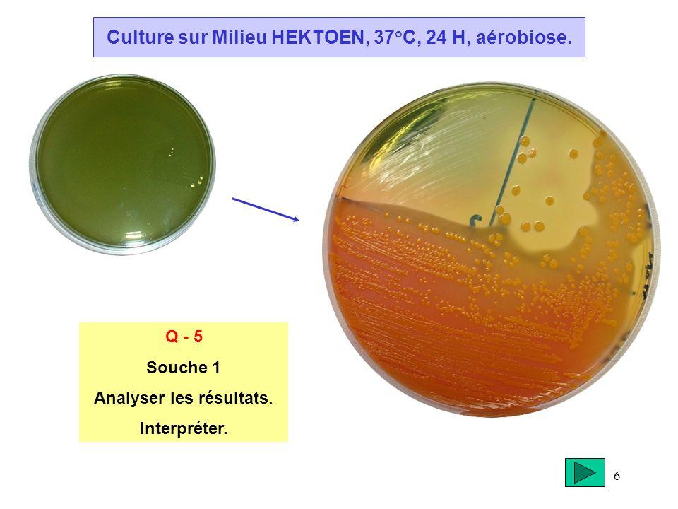6 Culture sur Milieu HEKTOEN, 37°C, 24 H, aérobiose. Q - 5 Souche 1 Analyser les résultats. Interpréter.