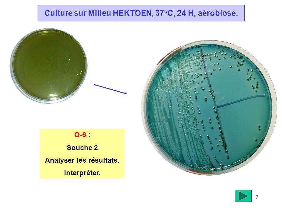 7 Culture sur Milieu HEKTOEN, 37°C, 24 H, aérobiose. Q-6 : Souche 2 Analyser les résultats. Interpréter.