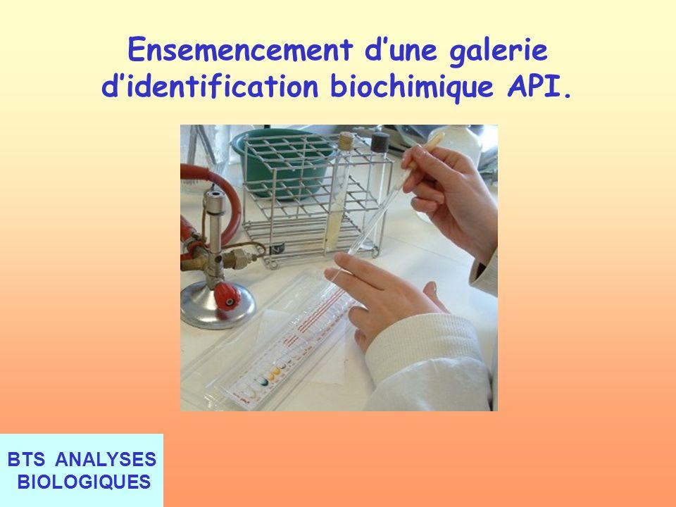BTS ANALYSES BIOLOGIQUES Ensemencement dune galerie didentification biochimique API.