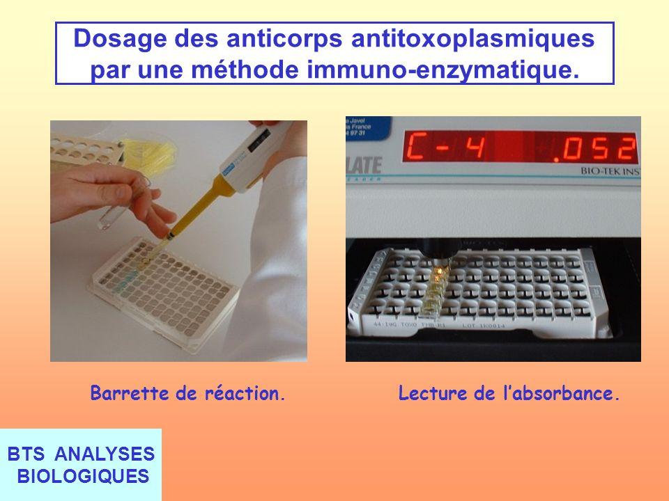 BTS ANALYSES BIOLOGIQUES Dosage des anticorps antitoxoplasmiques par une méthode immuno-enzymatique. Barrette de réaction. Lecture de labsorbance.