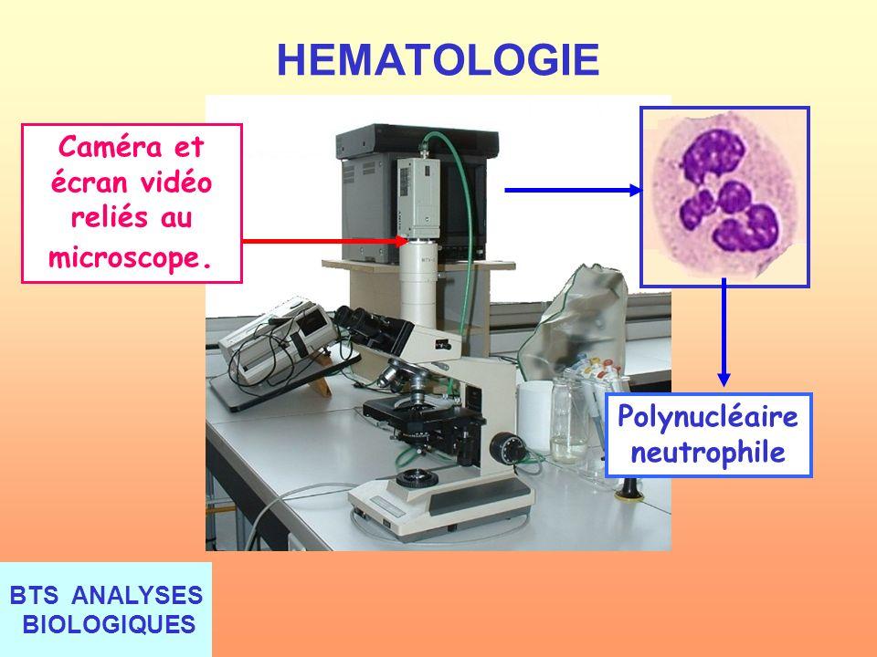 BTS ANALYSES BIOLOGIQUES HEMATOLOGIE Caméra et écran vidéo reliés au microscope. Polynucléaire neutrophile
