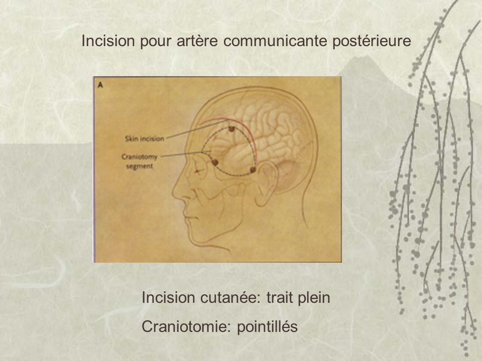 Incision pour artère communicante postérieure Incision cutanée: trait plein Craniotomie: pointillés