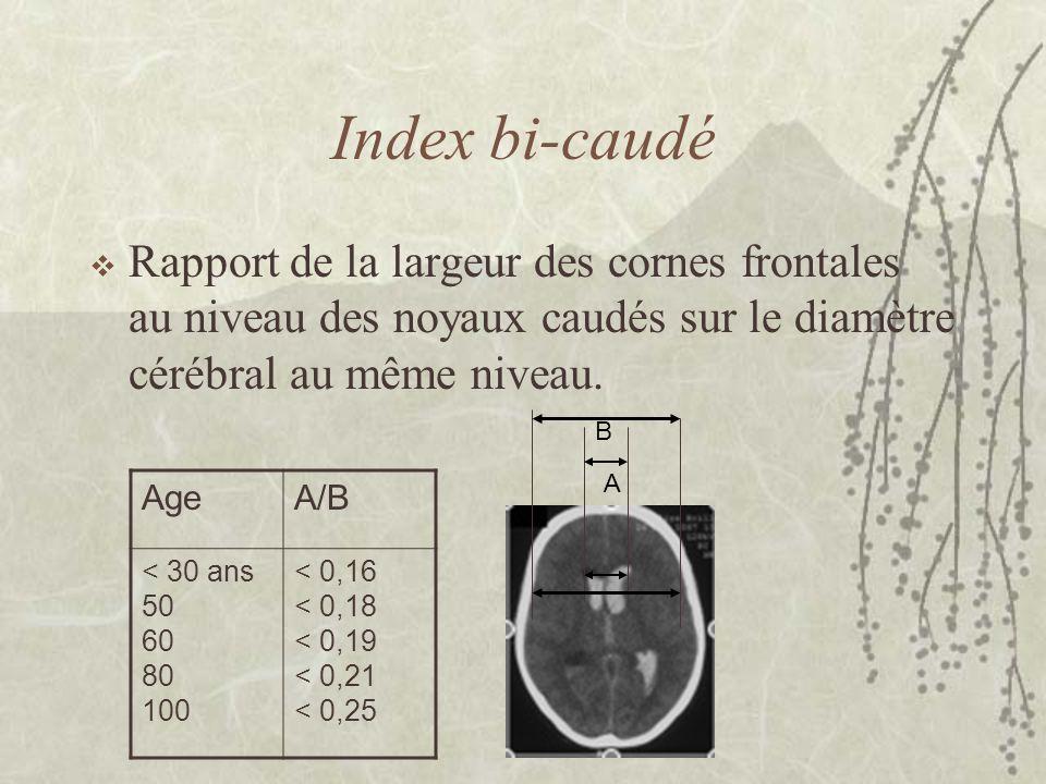 Index bi-caudé Rapport de la largeur des cornes frontales au niveau des noyaux caudés sur le diamètre cérébral au même niveau. A B AgeA/B < 30 ans 50