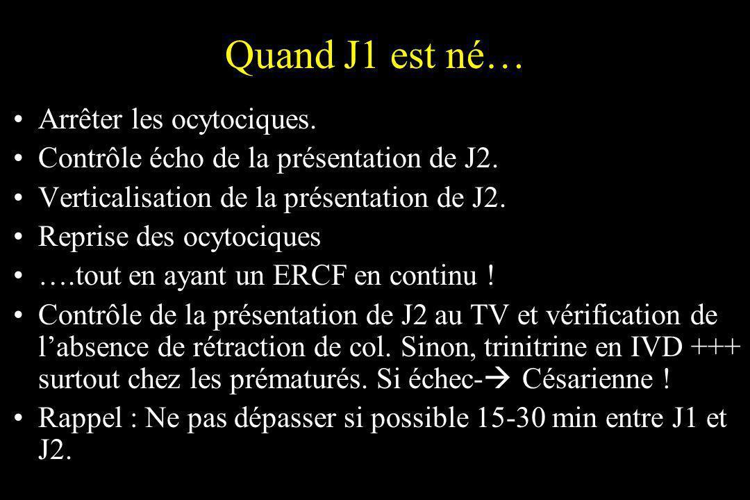 Quand J1 est né… Arrêter les ocytociques. Contrôle écho de la présentation de J2. Verticalisation de la présentation de J2. Reprise des ocytociques ….